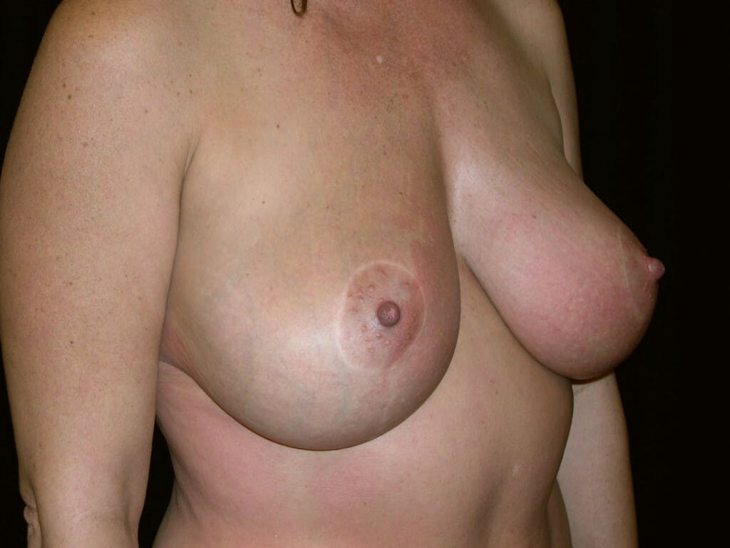 Vertical and Inverted T Breast Lift Gallery - Patient 39244176 - Image 4