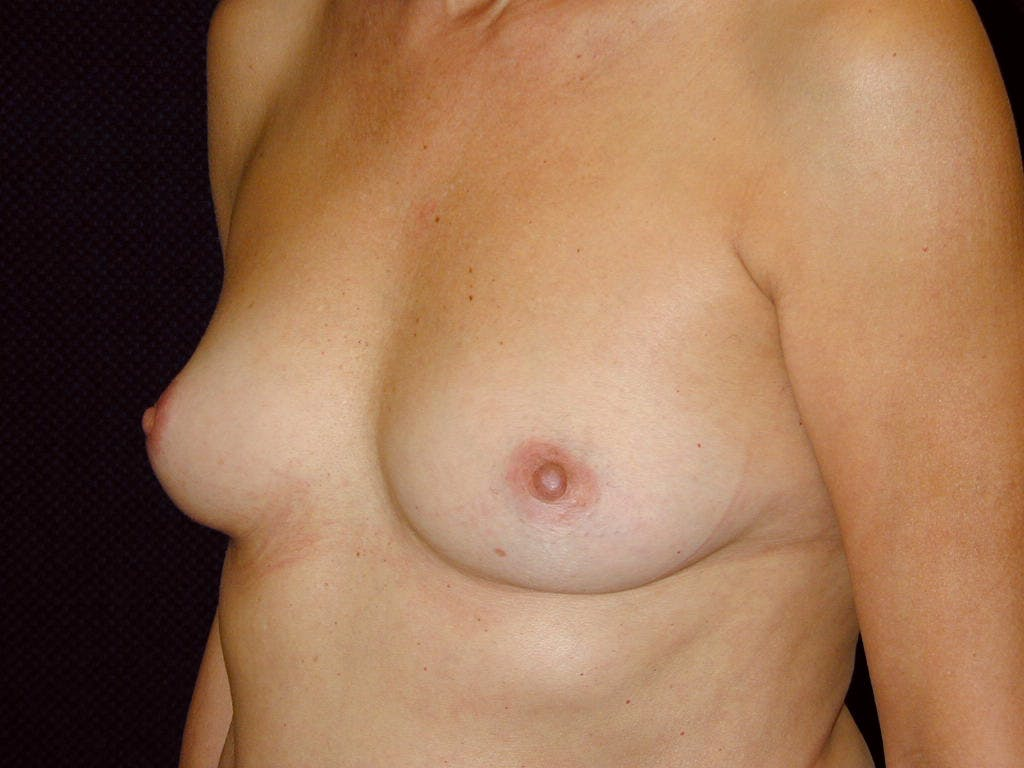 Breast Augmentation Gallery - Patient 39244174 - Image 3