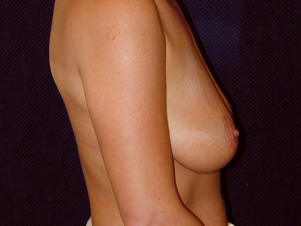 Vertical and Inverted T Breast Lift Gallery - Patient 39244176 - Image 5