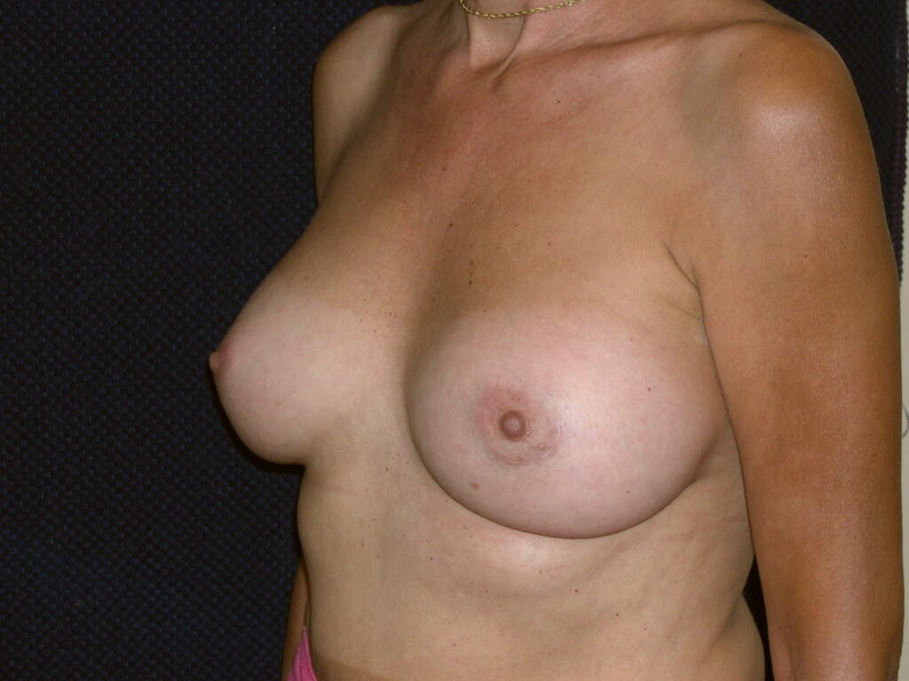 Breast Augmentation Gallery - Patient 39244174 - Image 4
