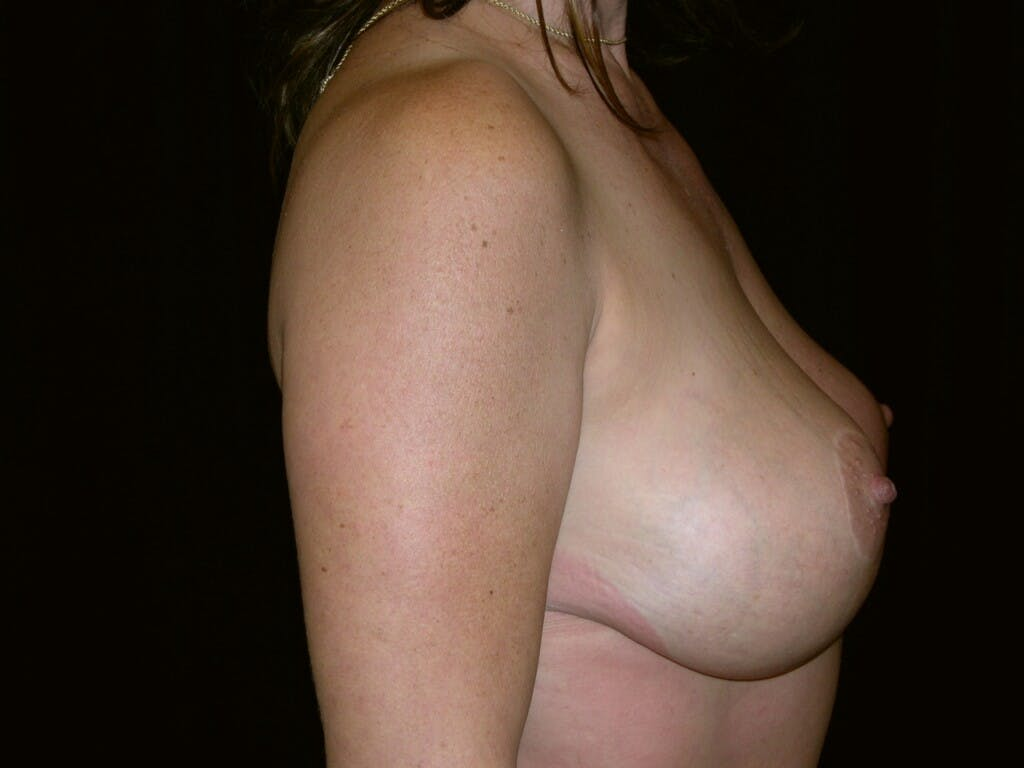 Vertical and Inverted T Breast Lift Gallery - Patient 39244176 - Image 6