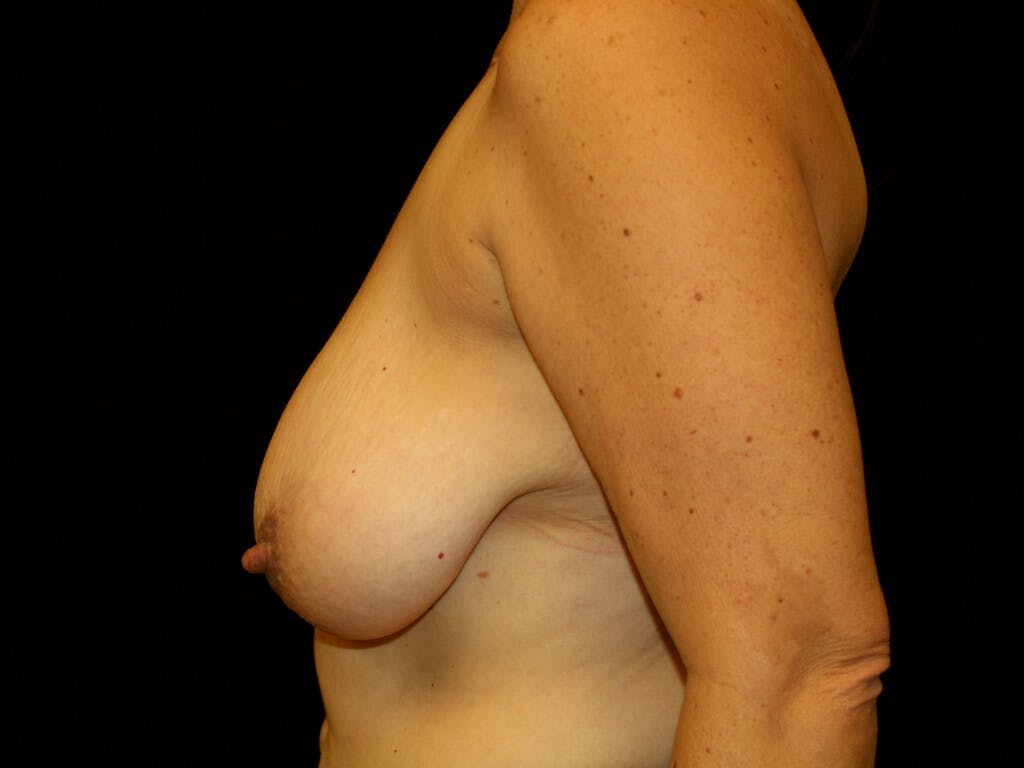 Breast Reduction T Incision Gallery - Patient 39244172 - Image 9