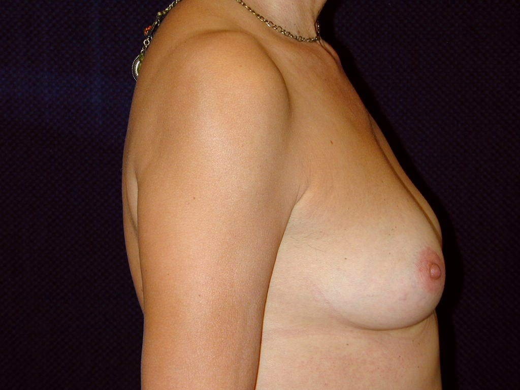 Breast Augmentation Gallery - Patient 39244174 - Image 5