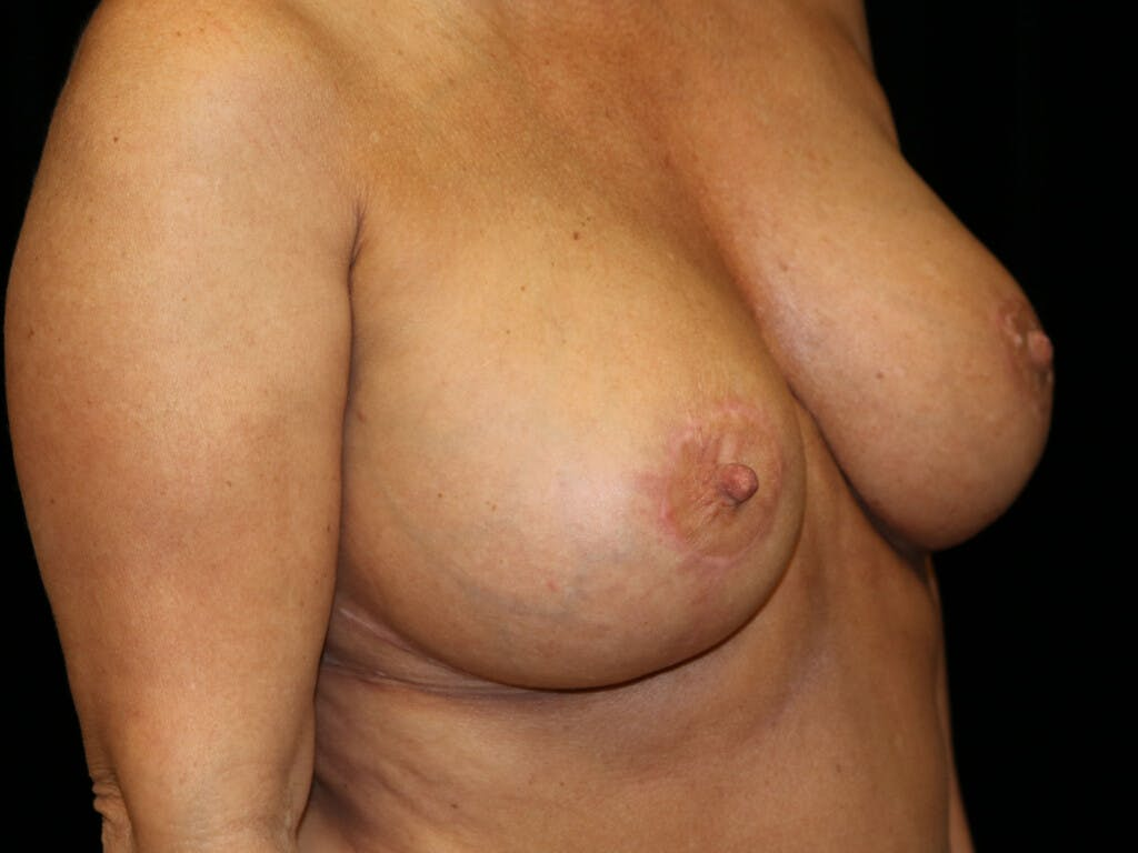 Revision Breast Surgery Gallery - Patient 39244175 - Image 4