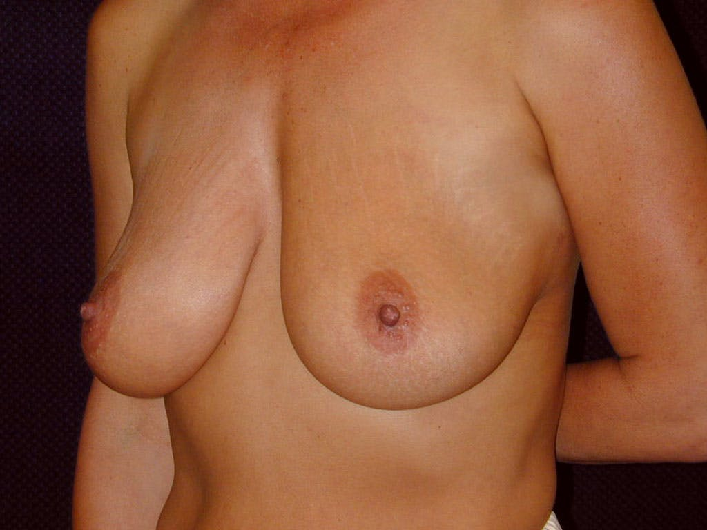 Vertical and Inverted T Breast Lift Gallery - Patient 39244176 - Image 7
