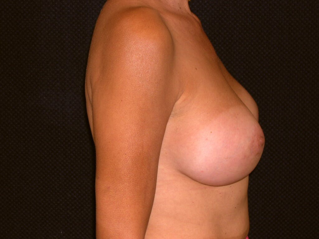 Breast Augmentation Gallery - Patient 39244174 - Image 6