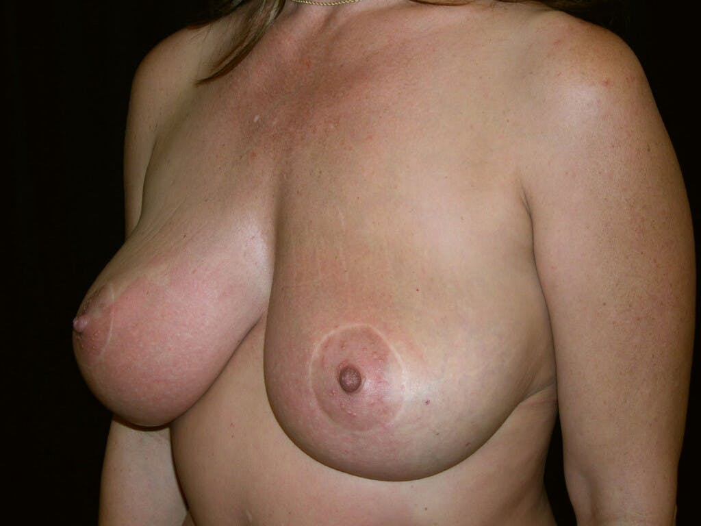 Vertical and Inverted T Breast Lift Gallery - Patient 39244176 - Image 8