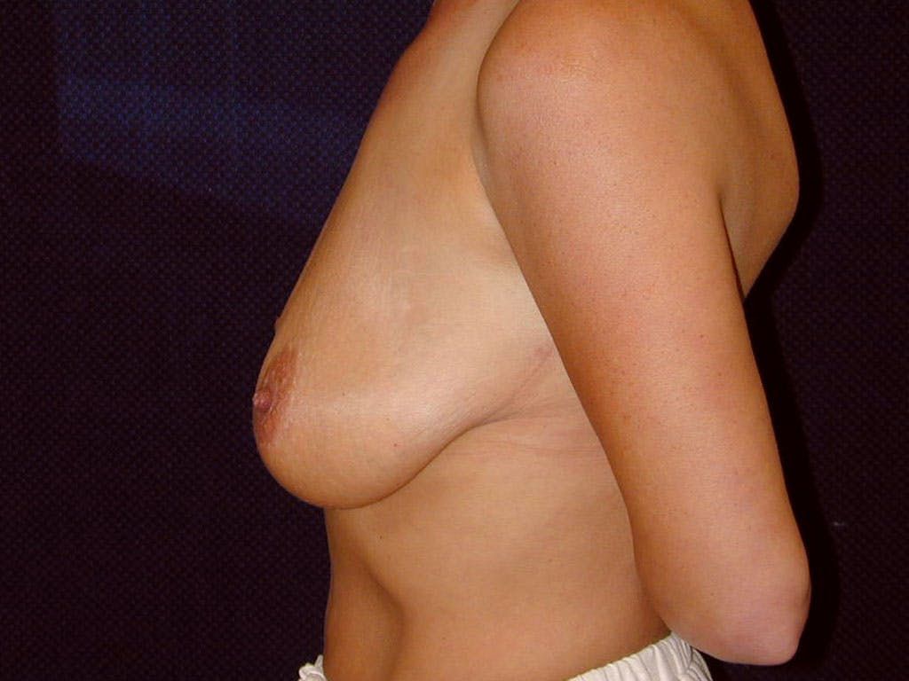 Vertical and Inverted T Breast Lift Gallery - Patient 39244176 - Image 9