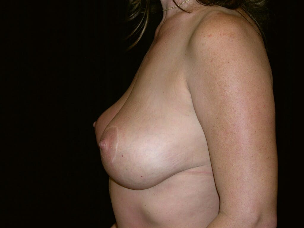 Vertical and Inverted T Breast Lift Gallery - Patient 39244176 - Image 10