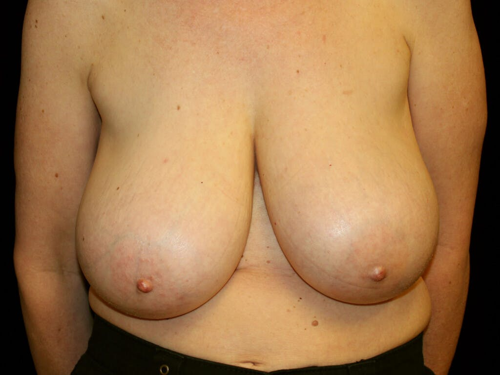 Breast Reduction T Incision Gallery - Patient 39244179 - Image 1