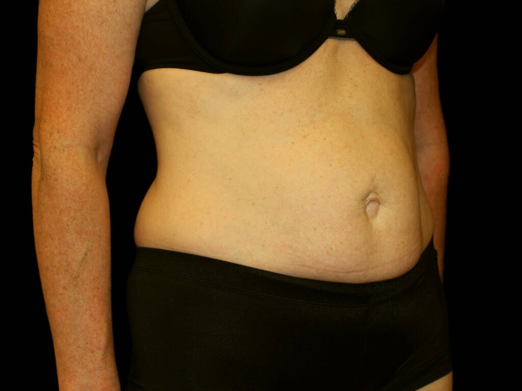 Tummy Tuck Gallery - Patient 39244177 - Image 3