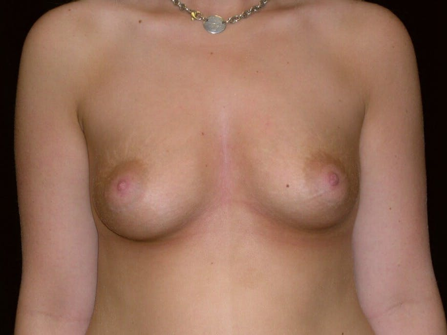 Breast Augmentation Gallery - Patient 39244178 - Image 1