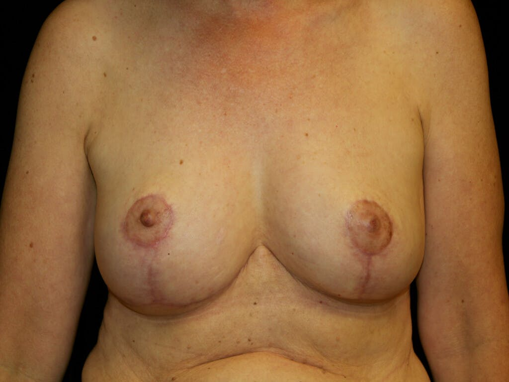 Breast Reduction T Incision Gallery - Patient 39244179 - Image 2