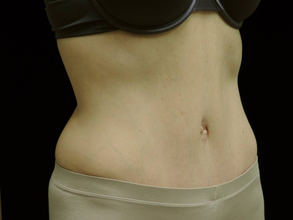 Tummy Tuck Gallery - Patient 39244177 - Image 4