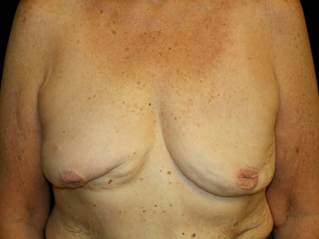 Revision Breast Surgery Gallery - Patient 39244180 - Image 1