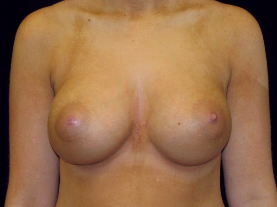Breast Augmentation Gallery - Patient 39244178 - Image 2