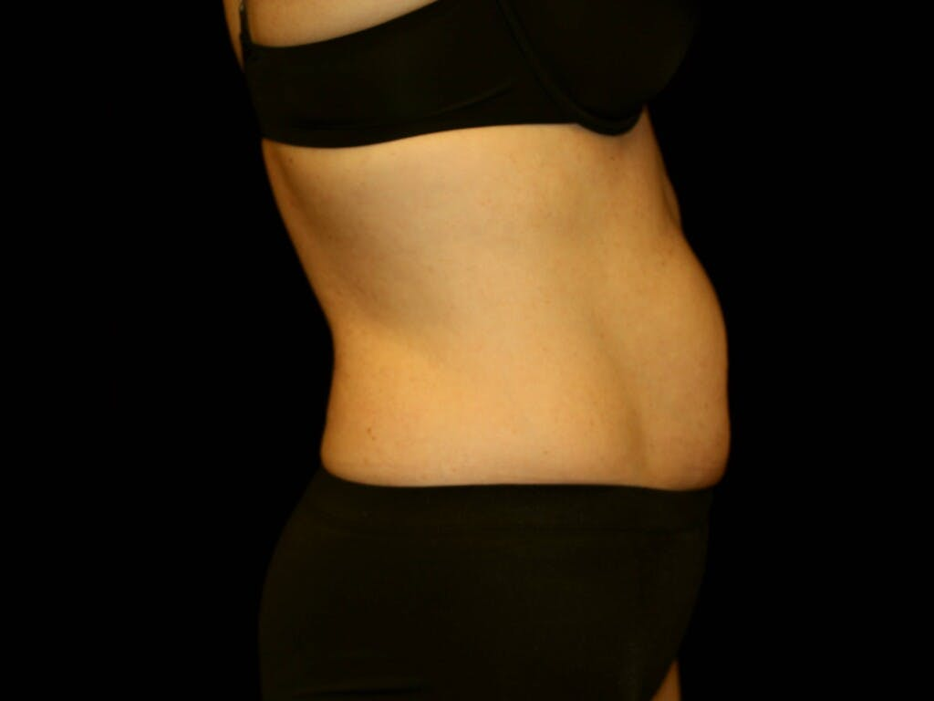 Tummy Tuck Gallery - Patient 39244177 - Image 5