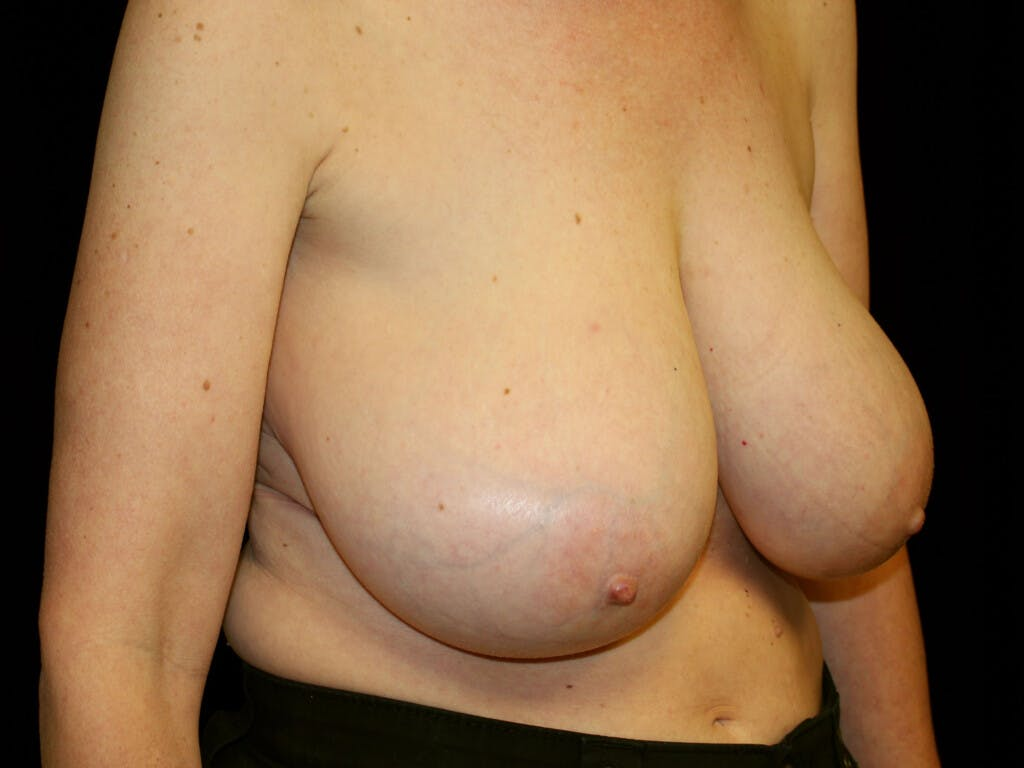 Breast Reduction T Incision Gallery - Patient 39244179 - Image 3