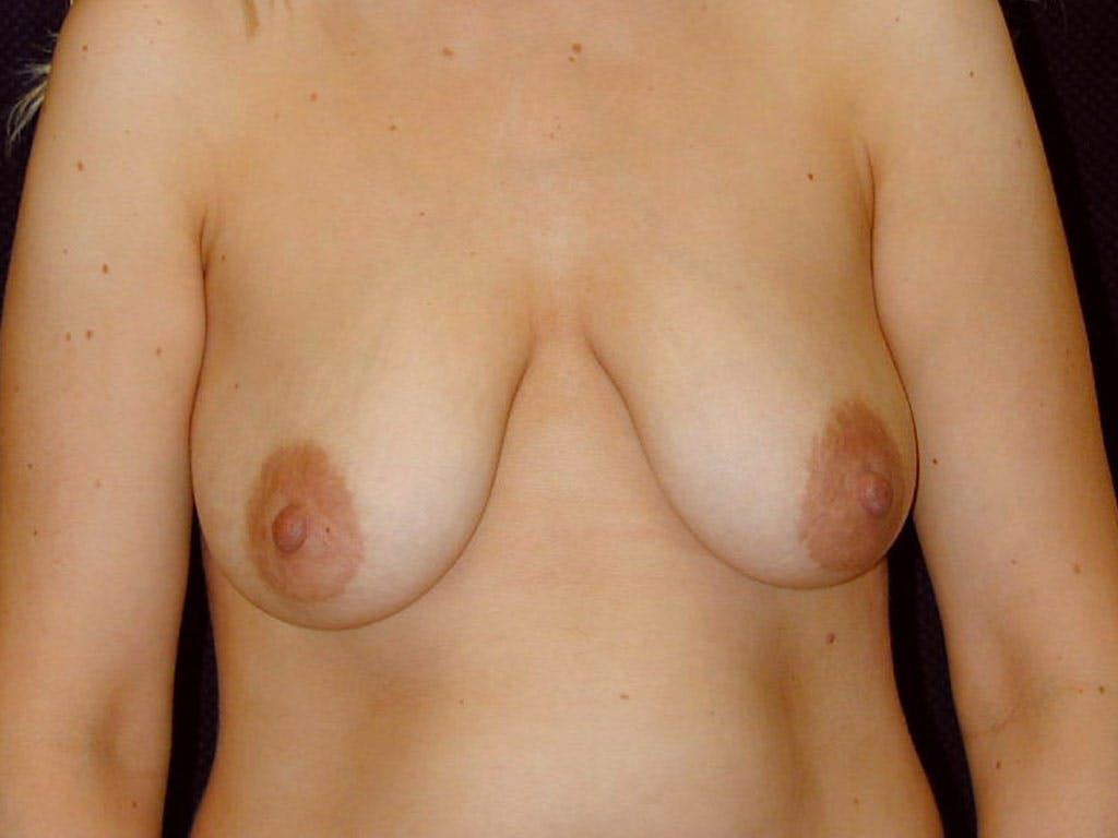 Vertical and Inverted T Breast Lift Gallery - Patient 39244181 - Image 1