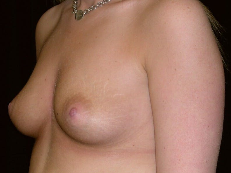 Breast Augmentation Gallery - Patient 39244178 - Image 3