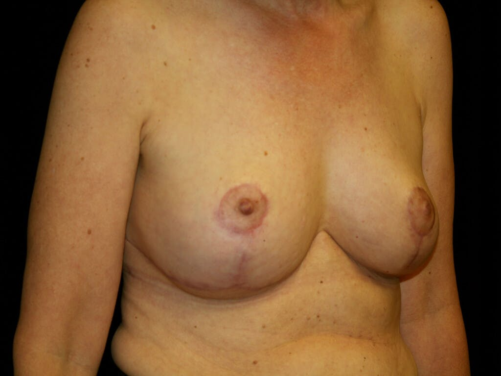Breast Reduction T Incision Gallery - Patient 39244179 - Image 4