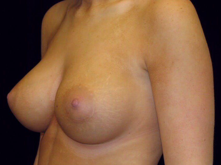 Breast Augmentation Gallery - Patient 39244178 - Image 4