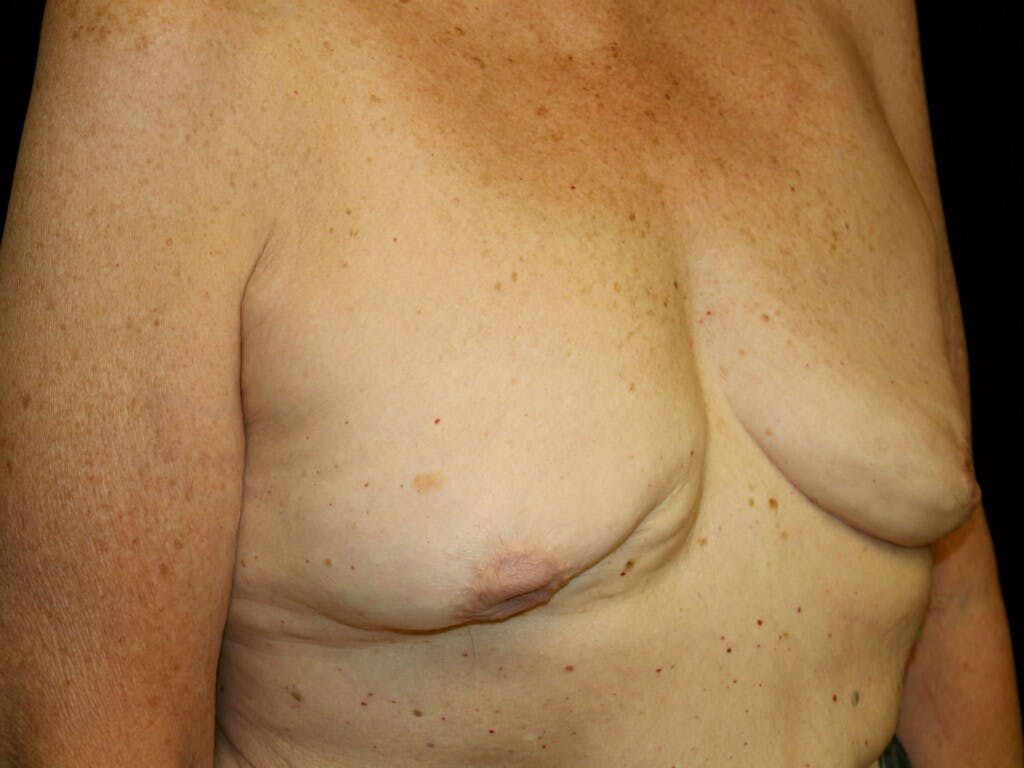 Revision Breast Surgery Gallery - Patient 39244180 - Image 3