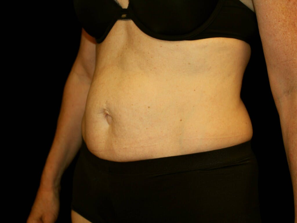 Tummy Tuck Gallery - Patient 39244177 - Image 7