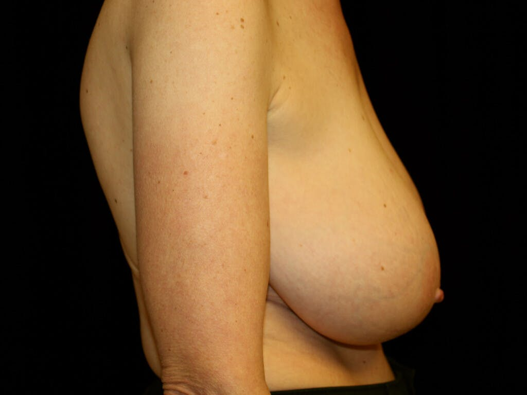 Breast Reduction T Incision Gallery - Patient 39244179 - Image 5