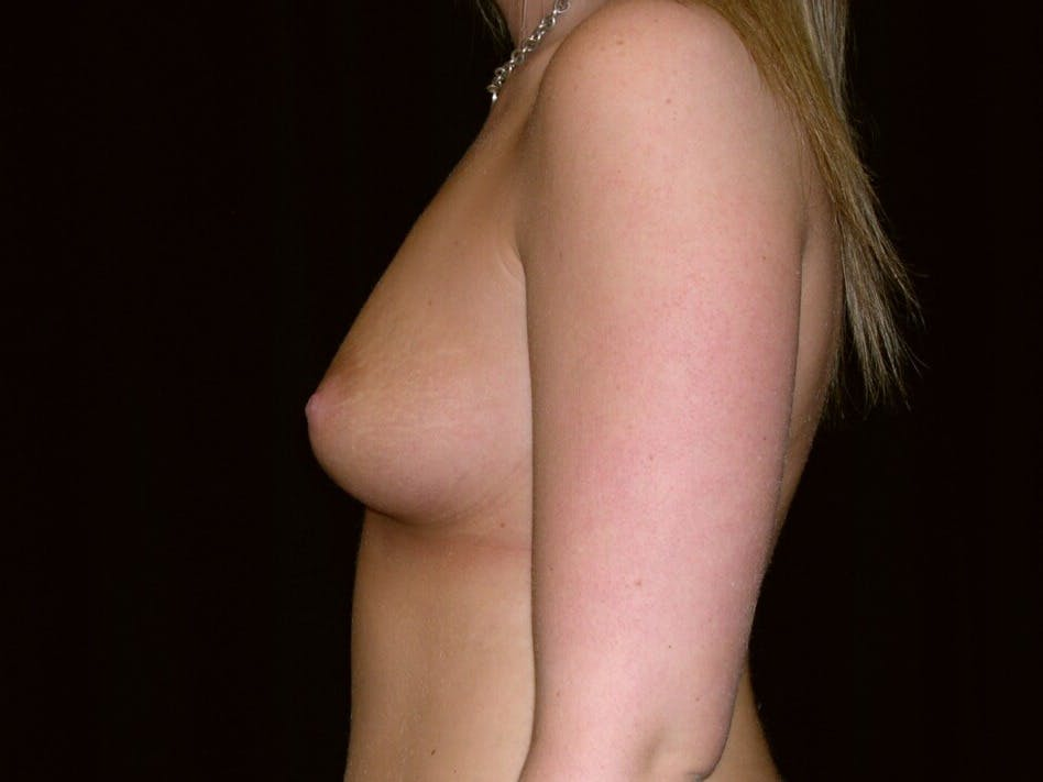 Breast Augmentation Gallery - Patient 39244178 - Image 5