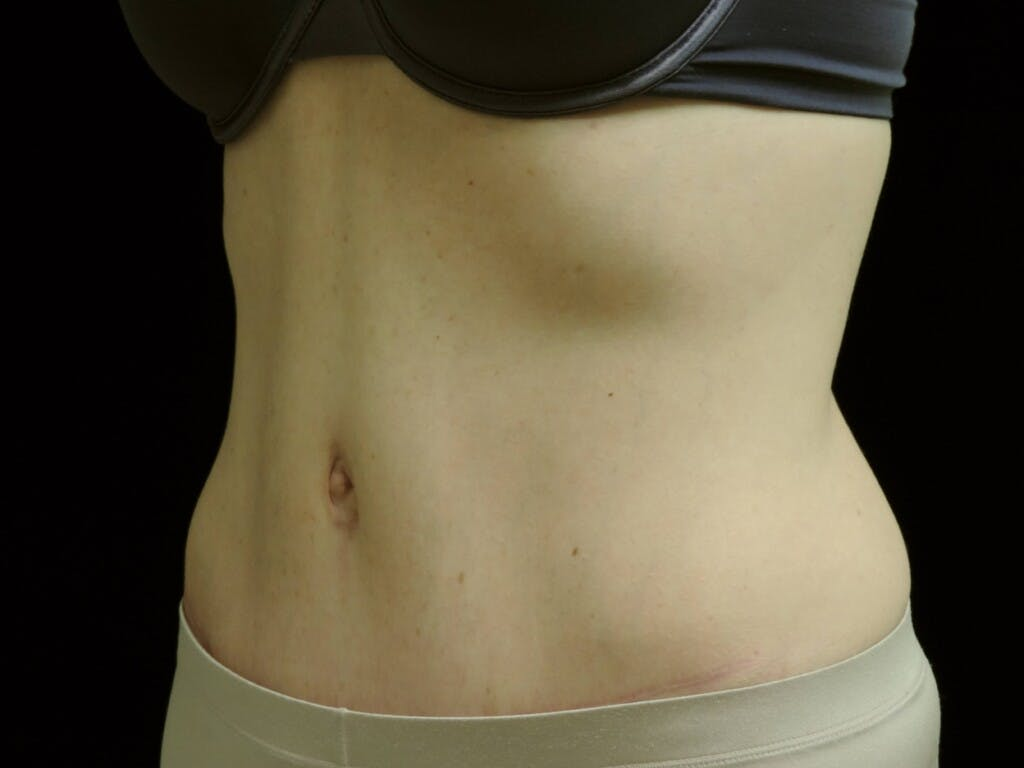 Tummy Tuck Gallery - Patient 39244177 - Image 8