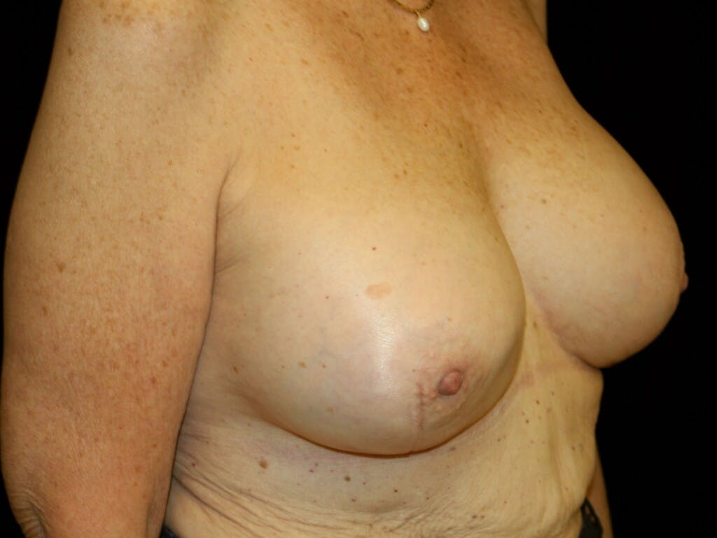 Revision Breast Surgery Gallery - Patient 39244180 - Image 4