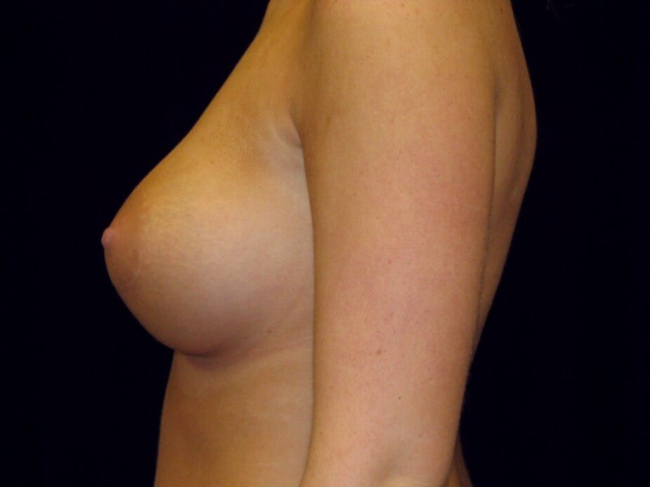 Breast Augmentation Gallery - Patient 39244178 - Image 6