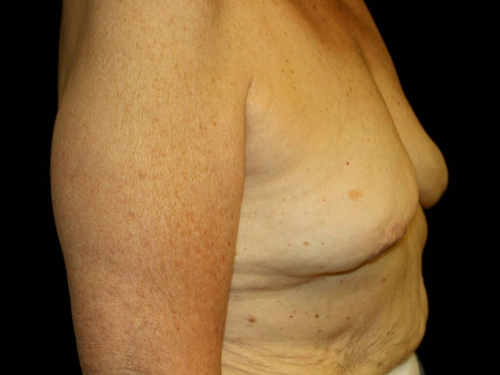 Revision Breast Surgery Gallery - Patient 39244180 - Image 5