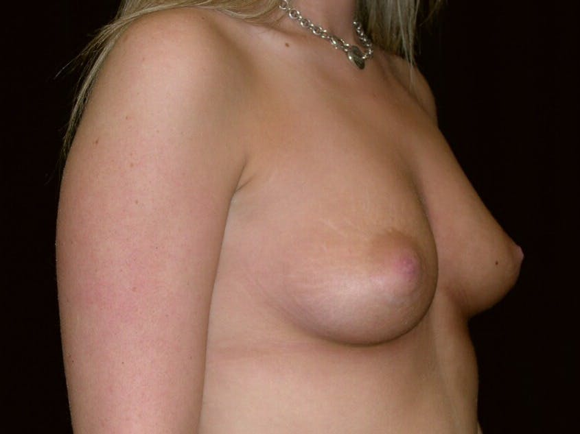 Breast Augmentation Gallery - Patient 39244178 - Image 7