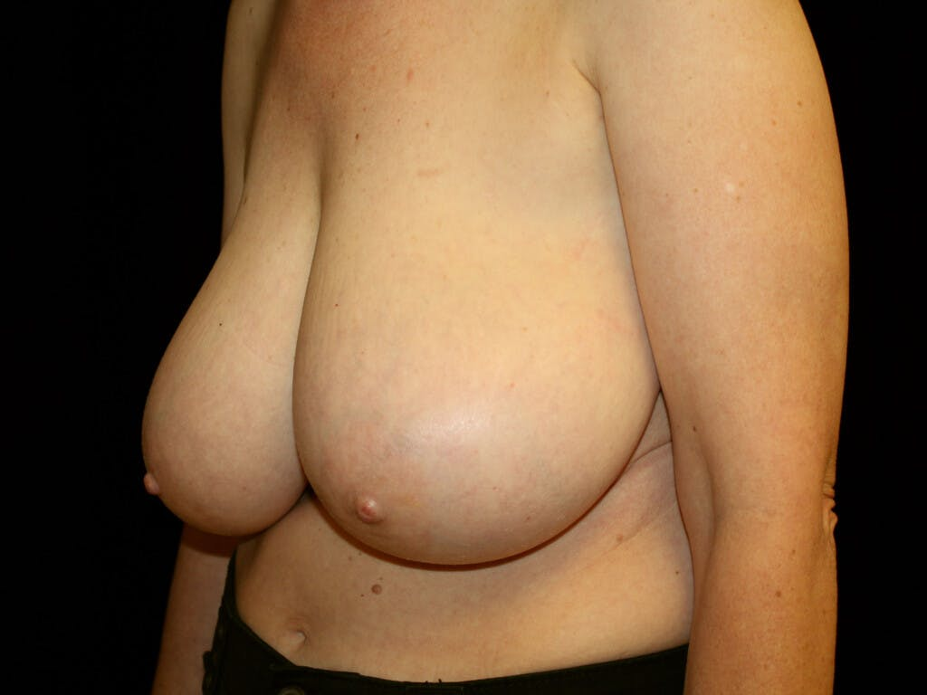 Breast Reduction T Incision Gallery - Patient 39244179 - Image 7