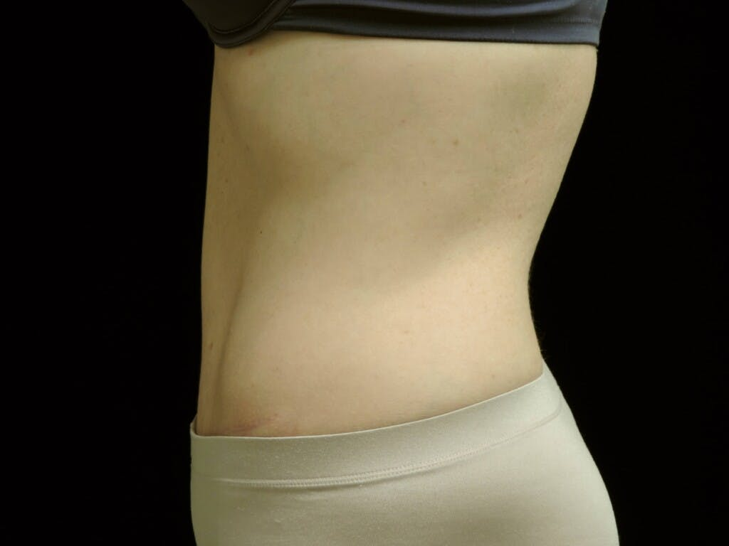 Tummy Tuck Gallery - Patient 39244177 - Image 10