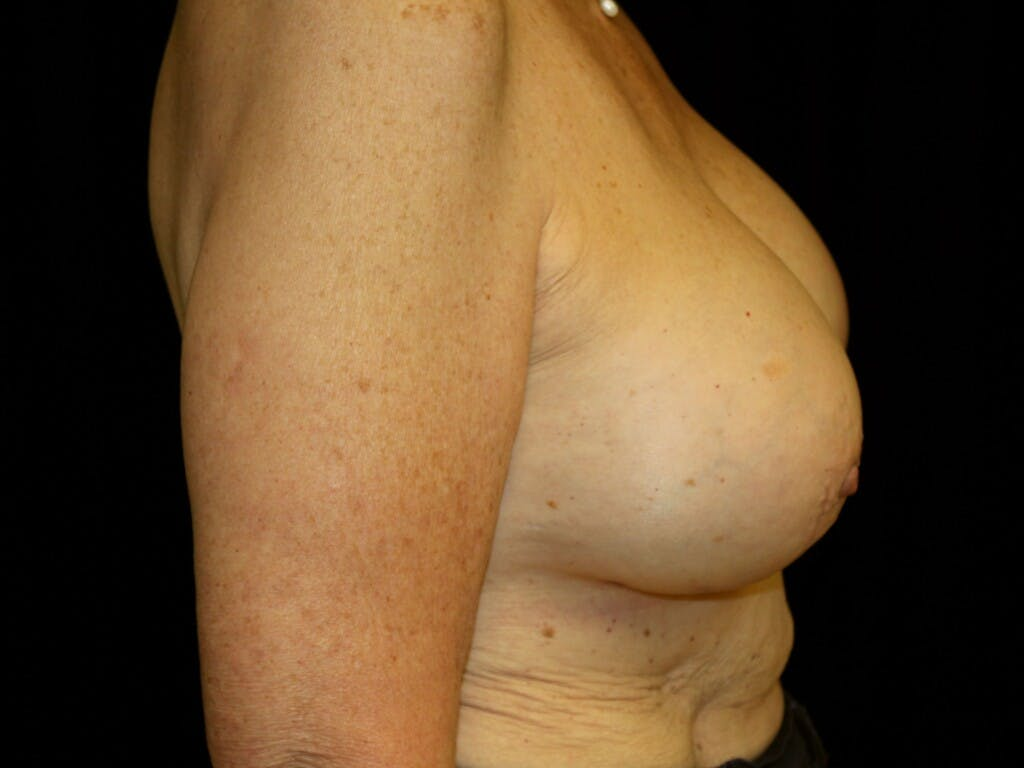 Revision Breast Surgery Gallery - Patient 39244180 - Image 6