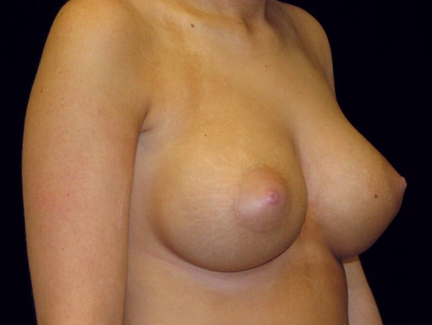 Breast Augmentation Gallery - Patient 39244178 - Image 8