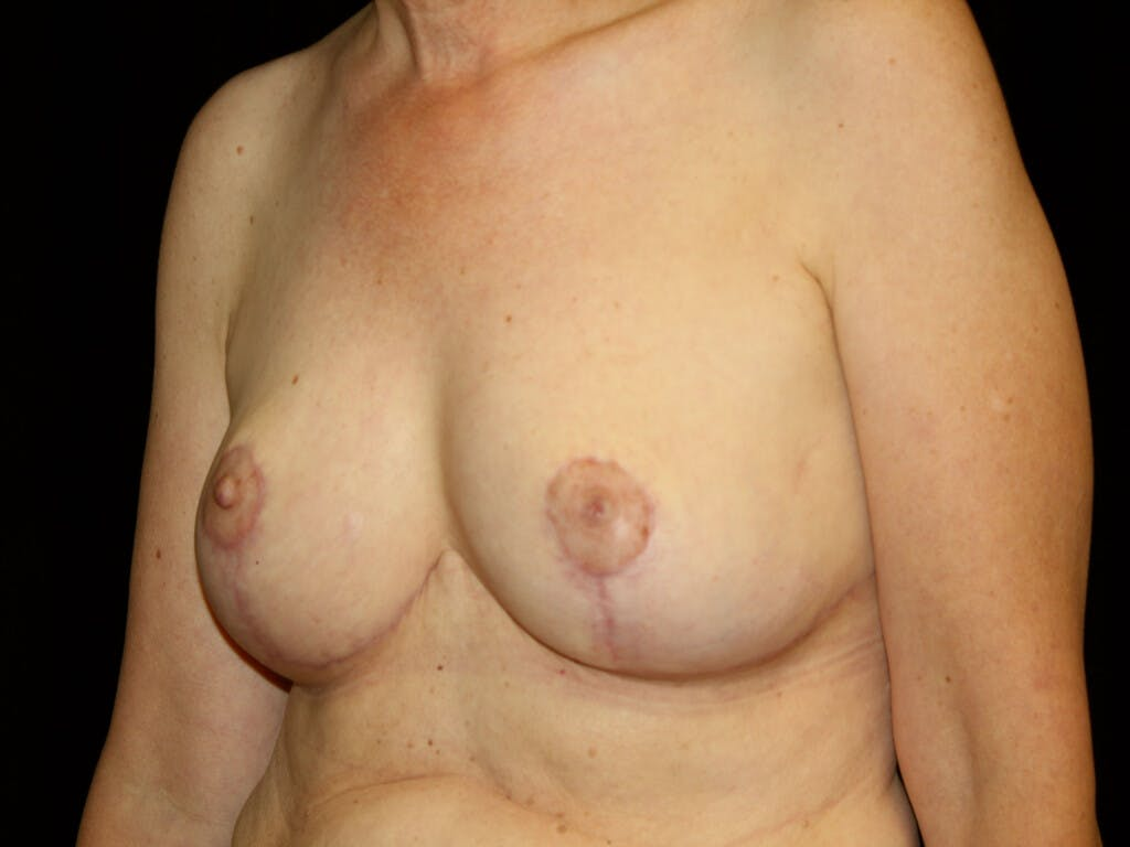 Breast Reduction T Incision Gallery - Patient 39244179 - Image 8