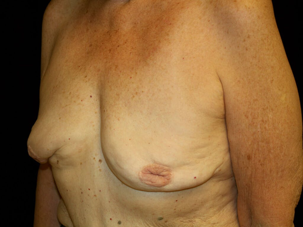 Revision Breast Surgery Gallery - Patient 39244180 - Image 7