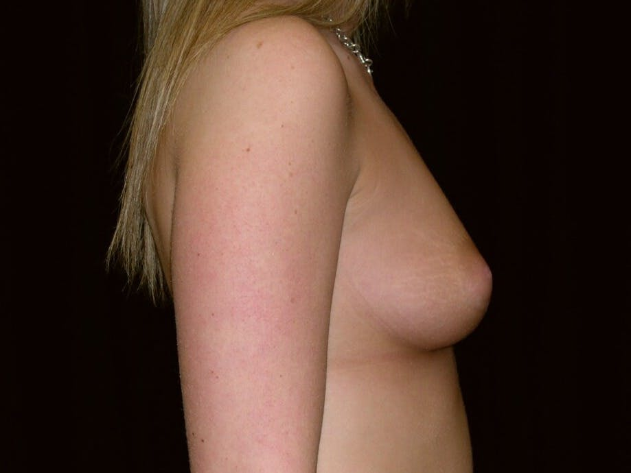 Breast Augmentation Gallery - Patient 39244178 - Image 9