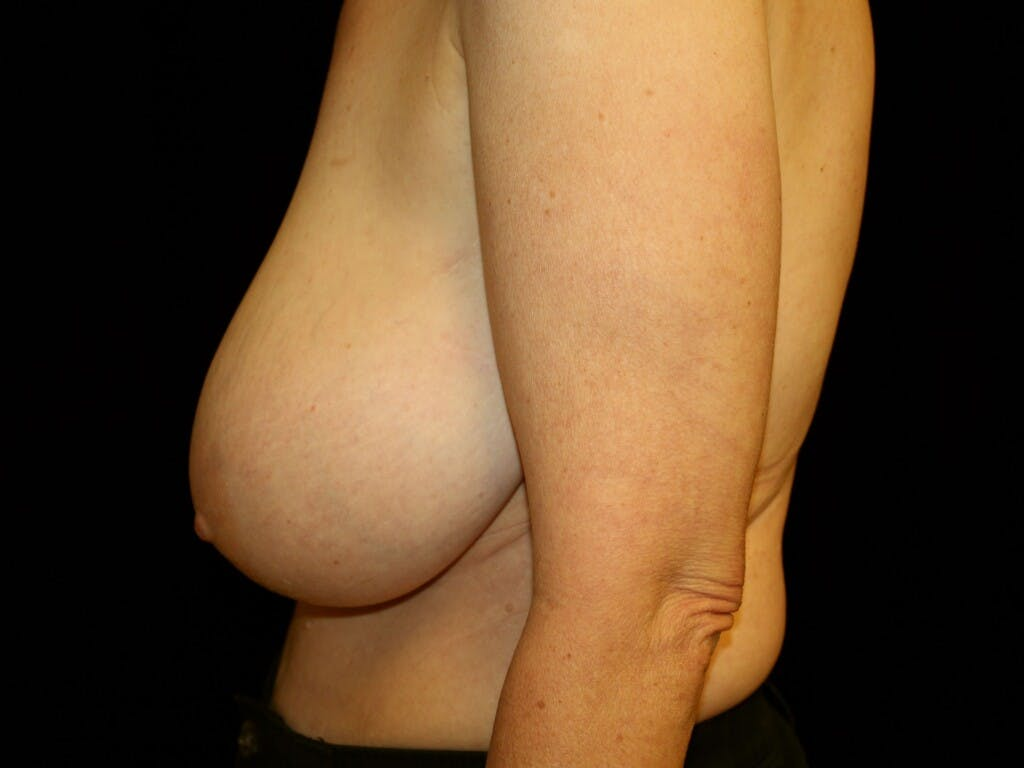 Breast Reduction T Incision Gallery - Patient 39244179 - Image 9