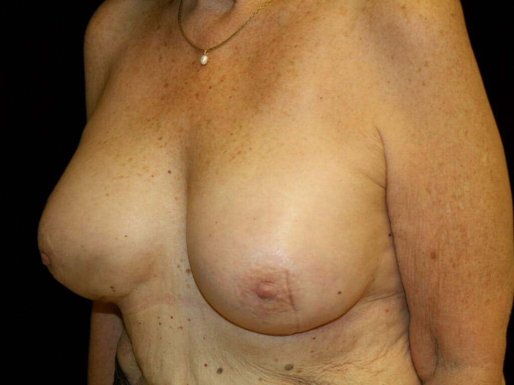 Revision Breast Surgery Gallery - Patient 39244180 - Image 8