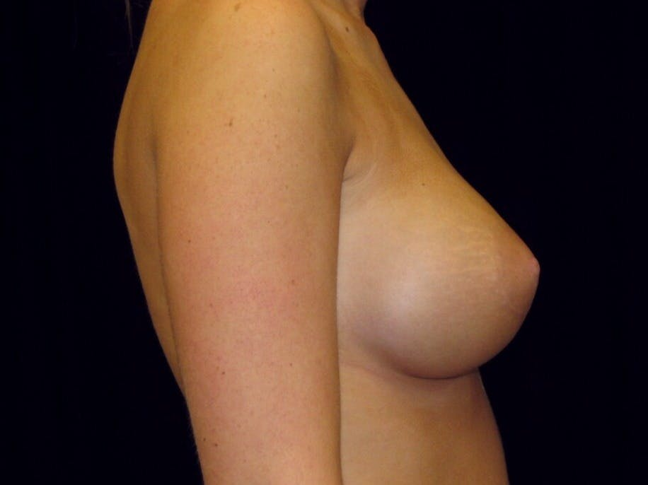 Breast Augmentation Gallery - Patient 39244178 - Image 10