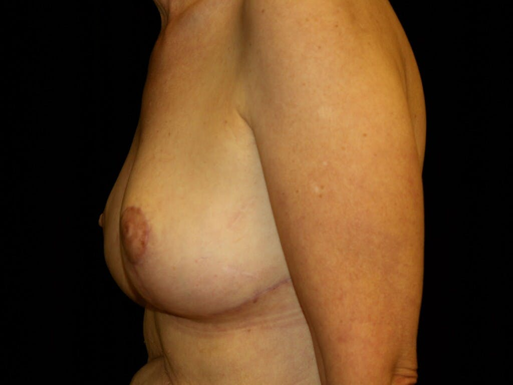 Breast Reduction T Incision Gallery - Patient 39244179 - Image 10