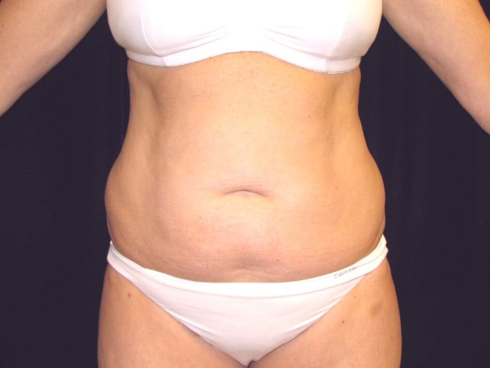 Tummy Tuck Gallery - Patient 39244184 - Image 1