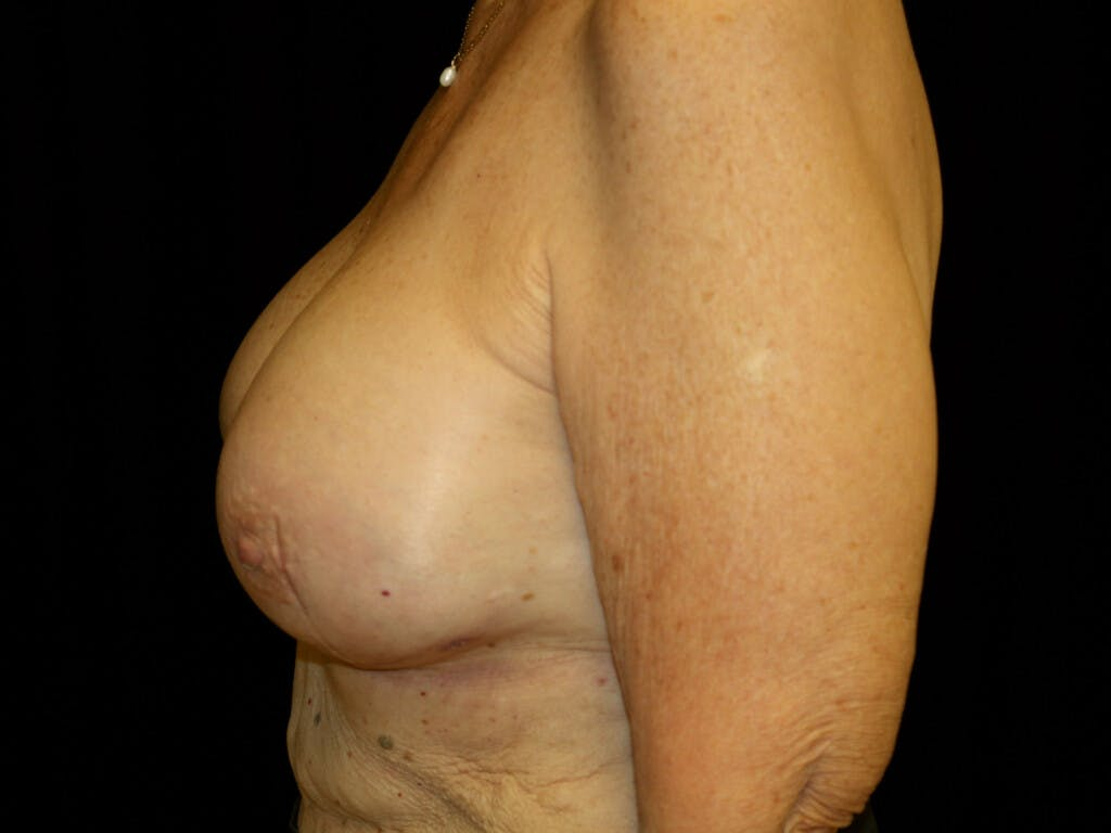 Revision Breast Surgery Gallery - Patient 39244180 - Image 10