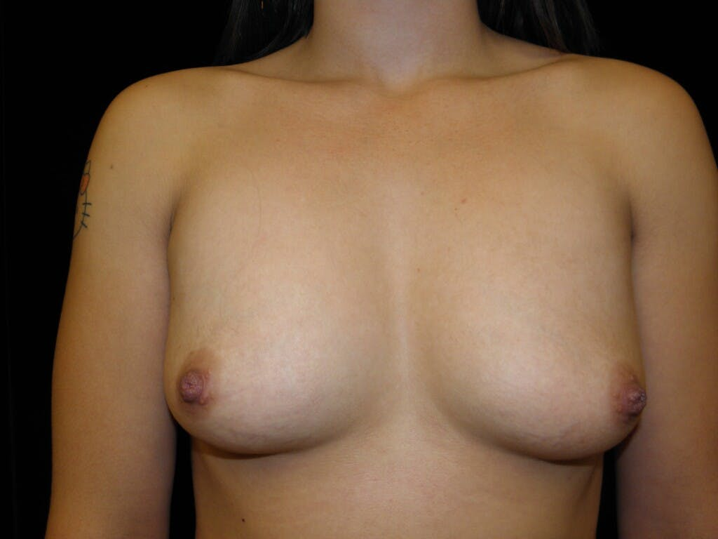 Breast Augmentation Gallery - Patient 39244182 - Image 1