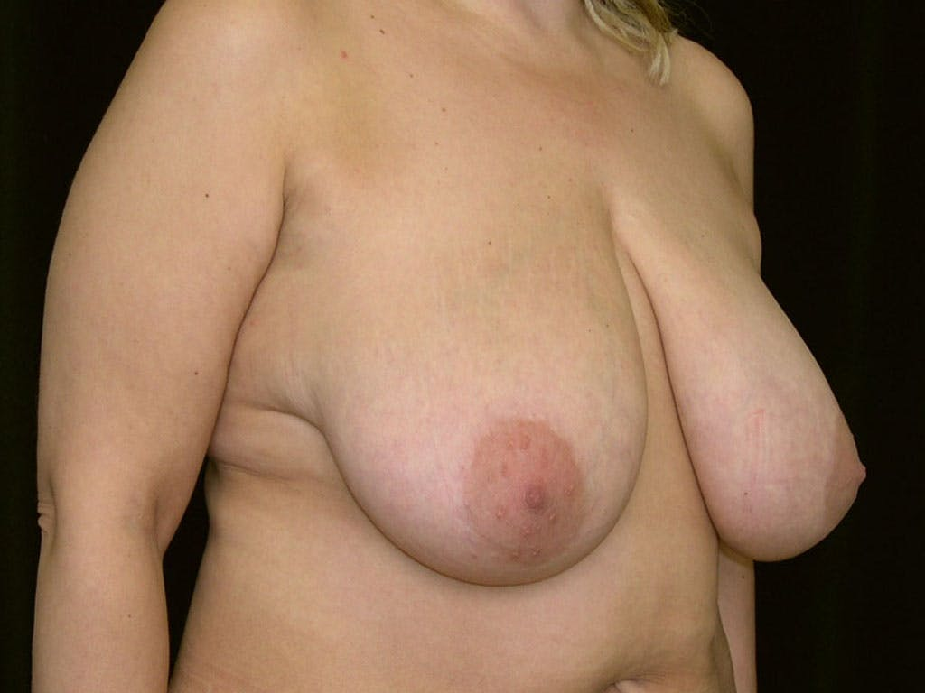 Breast Reduction T Incision Gallery - Patient 39244183 - Image 1